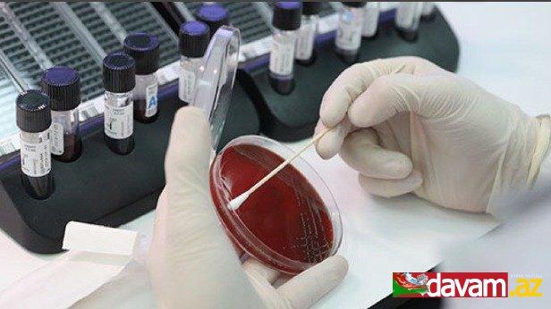 Qırğızıstanda koronavirusa yoluxanların sayı 68 nəfər artıb